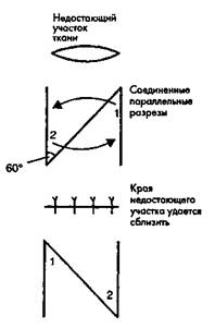 Рис. 11. Z-плаcтика