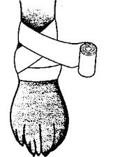 Рис. 32. Колосовидная повязка