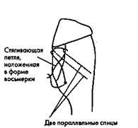 Рис. 43. Фиксация перелома гребня большой берцовой кости стягивающей петлей