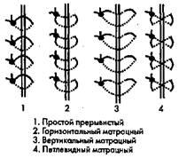Рис. 48. Виды хирургических швов